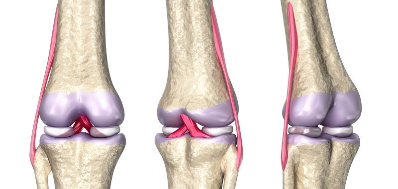 Изображение - Повреждение внутренней боковой связки коленного сустава nadkolennik1