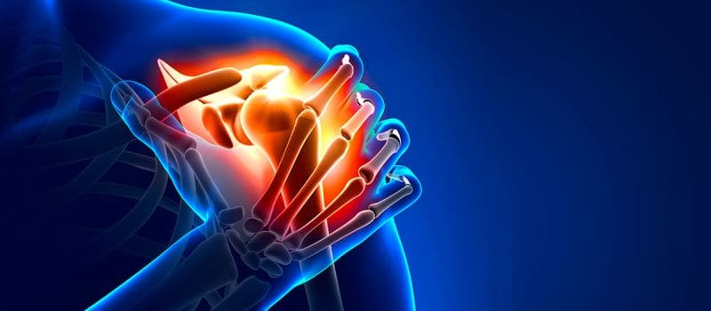 Лечение травмы плечевого сустава в Германии
