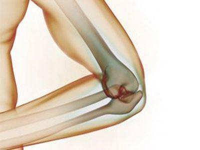 Лечение травмы локтевого сустава в германии