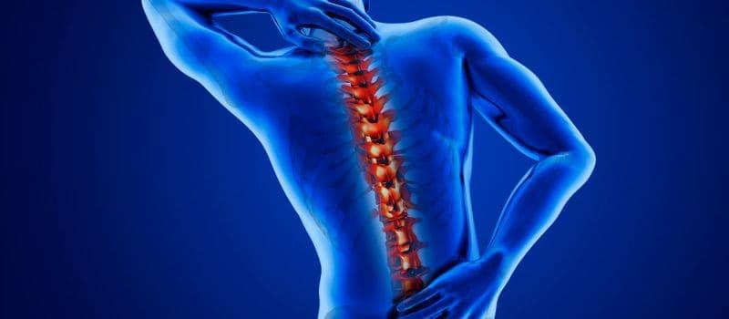 Причины острого остеохондроза