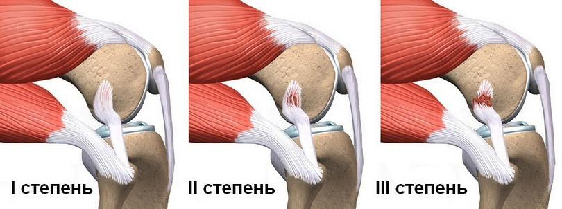 Разрыв медиальной связки коленного сустава восстановление субхондральный склероз голеностопного сустава