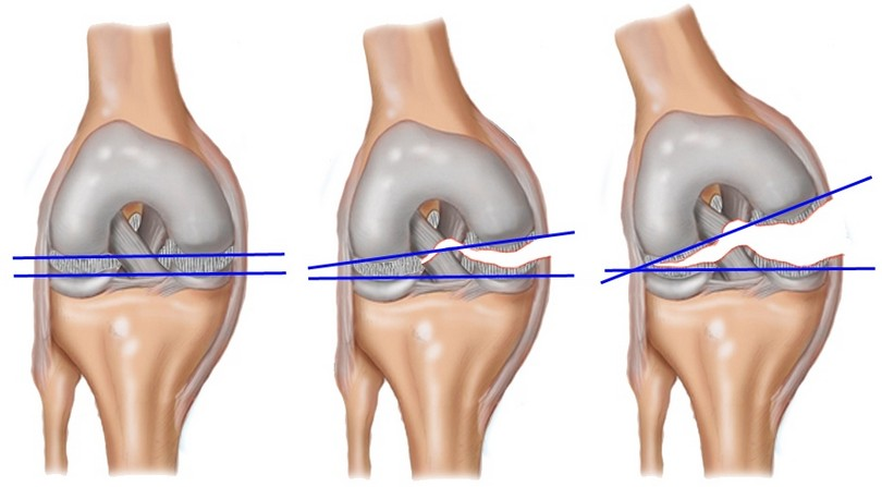 Изображение - Медиальная боковая связка коленного сустава khronicheskaya-lateralnaya-nestabilnost-nadkolennika-3-1