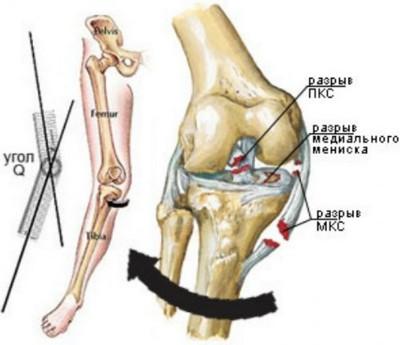 Изображение - Медиальная боковая связка коленного сустава khronicheskaya-lateralnaya-nestabilnost-nadkolennika-3-3