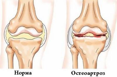 Лечение хряща коленного сустава