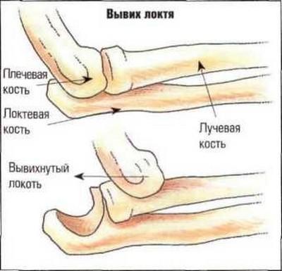 Врожденный вывих локтевых и лучезапястных суставов желатин от артроза тазобедренного сустава отзывы